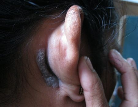 5-eczema-82061C87286-FC29-5CFD-CD64-02803FE243ED.jpg
