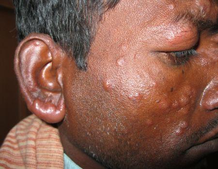 9-lepromatous-leprosy-8200AB5DE6B-13EE-06EB-E358-E06C4024F7FB.jpg